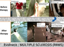 MULTIPLE SCLEROSIS Evidence